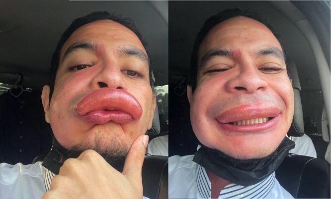 Bibir Membengkak Terus Lepas Kena Sengat Tebuan